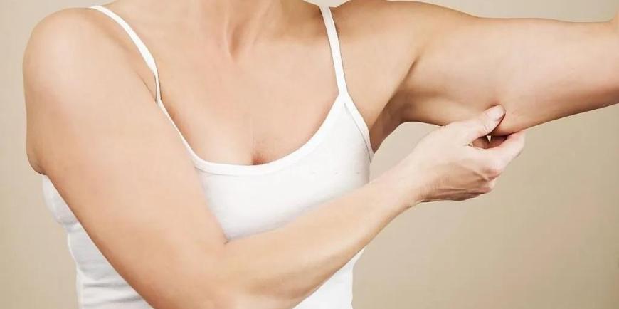 Arm Lifts