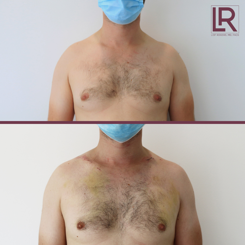 clavicle lengthening before & after